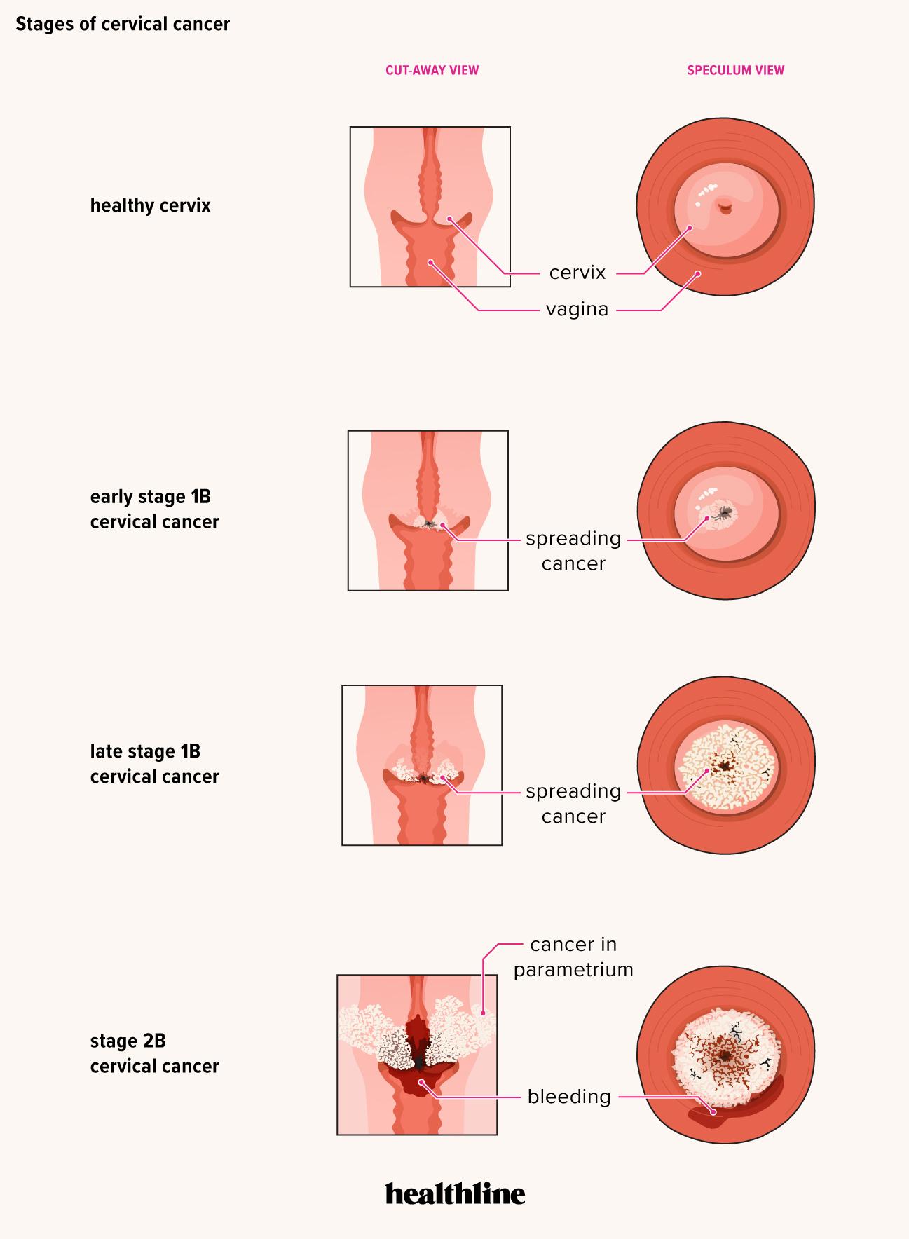 cancer la plamani pareri cancerul bronhopulmonar plan de ingrijire