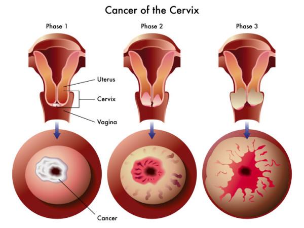 cancer de prostata causa impotencia vaccin papillomavirus laboratoire