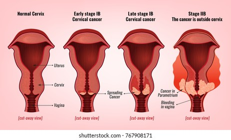 cervical cancer testing intraductal papilloma breast treatment