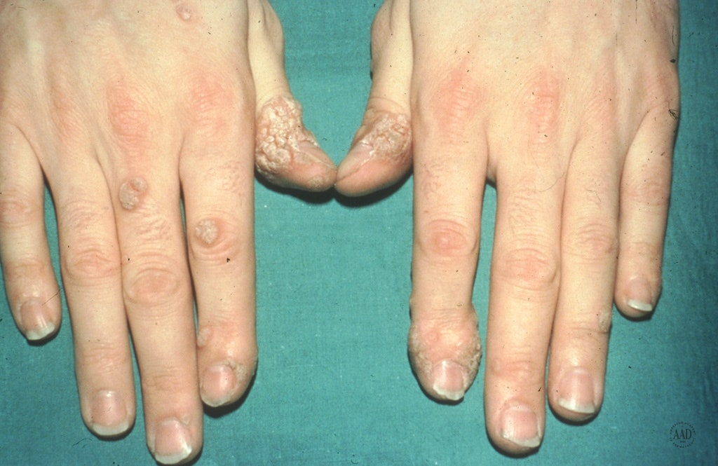 intraductal papilloma vs fibroadenoma