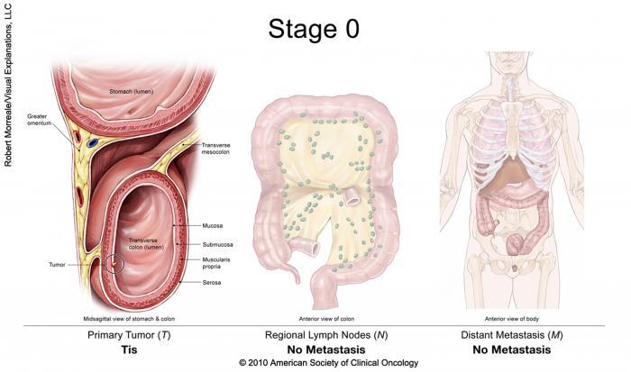se vindeca cancerul de col uterin cancer de colon en mujeres sintomas