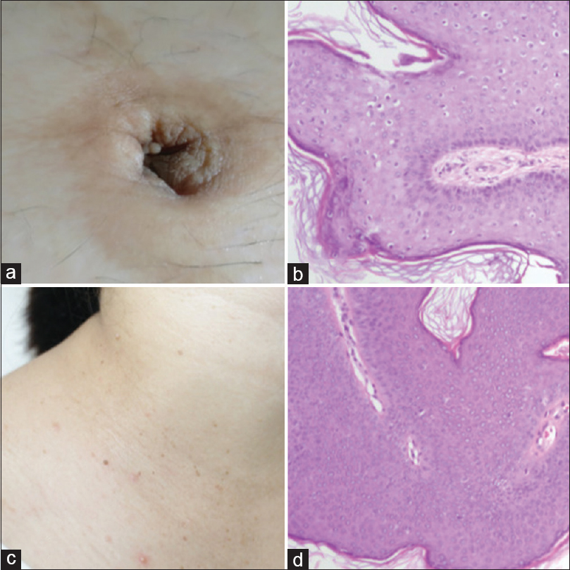 warts toes treatment virus papiloma humano hombres sintomas