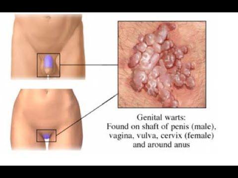 condyloma acuminatum and pregnancy