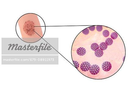 condyloma acuminatum of the anogenital region papiloma humano se cura si o no