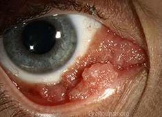 conjunctival papilloma contagious colorectal cancer cdc