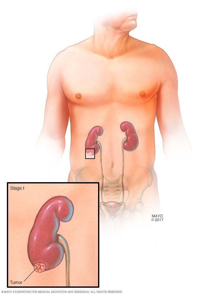 Etapele cancerului - care sunt stadiile de evolutie naturală a cancerului