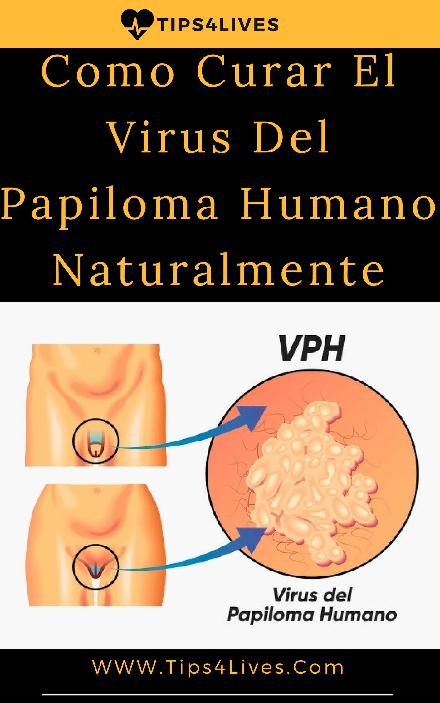 como quitar el virus del papiloma humano en hombres