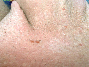 human papillomavirus in pregnancy
