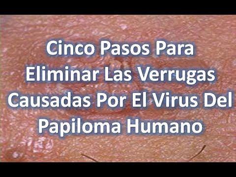 virus papiloma humano tratamiento casero