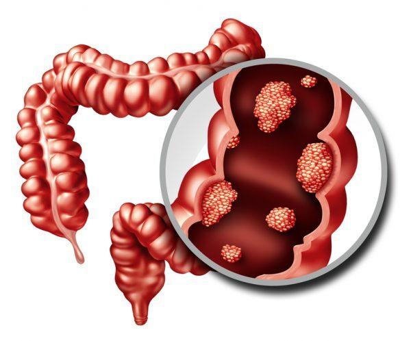cancer de prostata localizat papilomatosis esofagica tratamiento