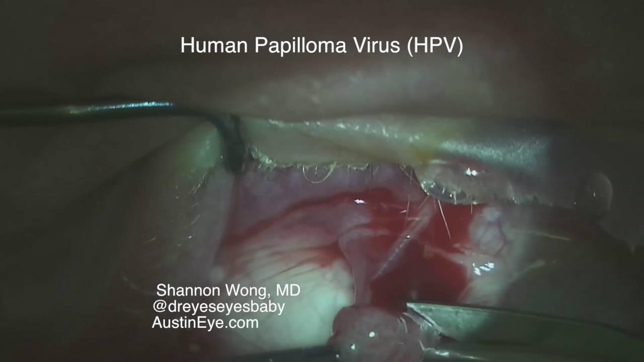 human papillomavirus skin lesions gastric cancer epidemiology and risk factors