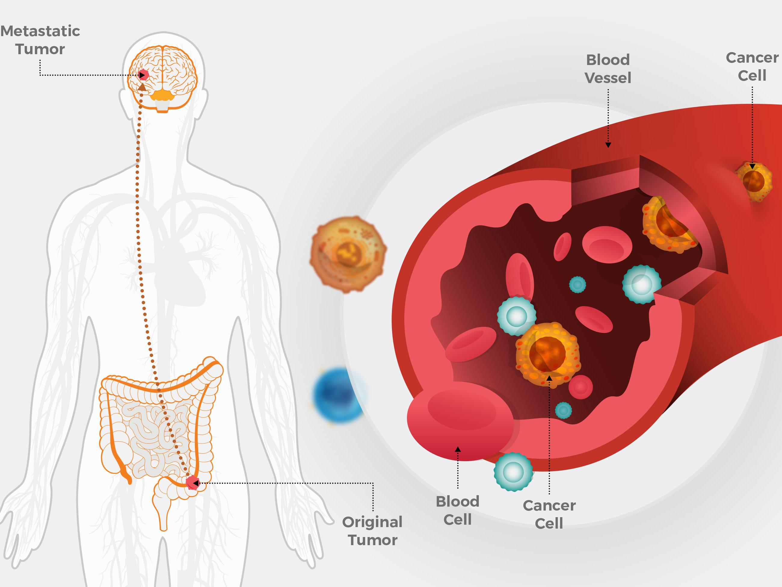 viermisori in scaun la adulti treatment of helminth infection in pregnancy