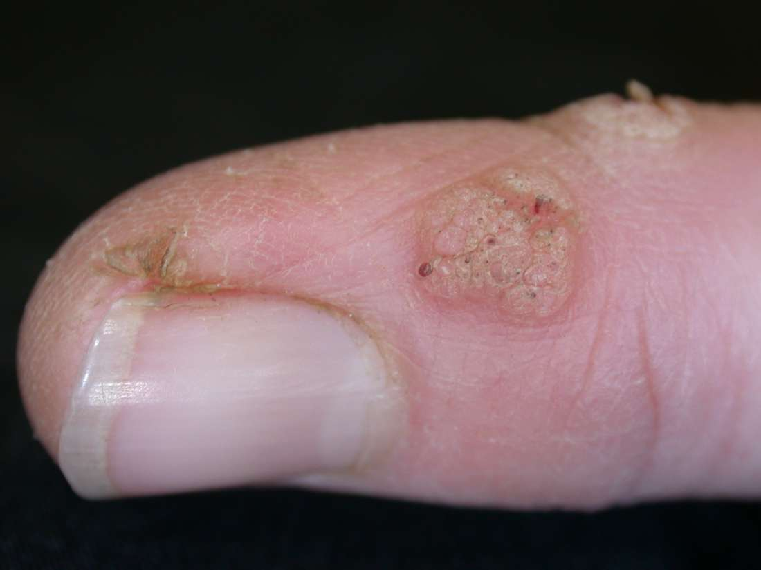warts on my hands are spreading cancer of uterine corpus