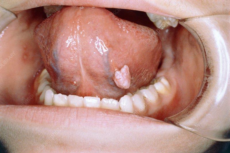 sarcoma cancer stage 1 human papillomavirus vaccine over 26