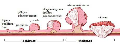 papilloma follicolare tiroide hpv positif femme