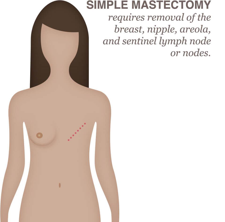 hormonal cancer mastectomy