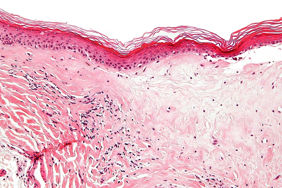 cancer trahee simptome will vestibular papillomatosis go away