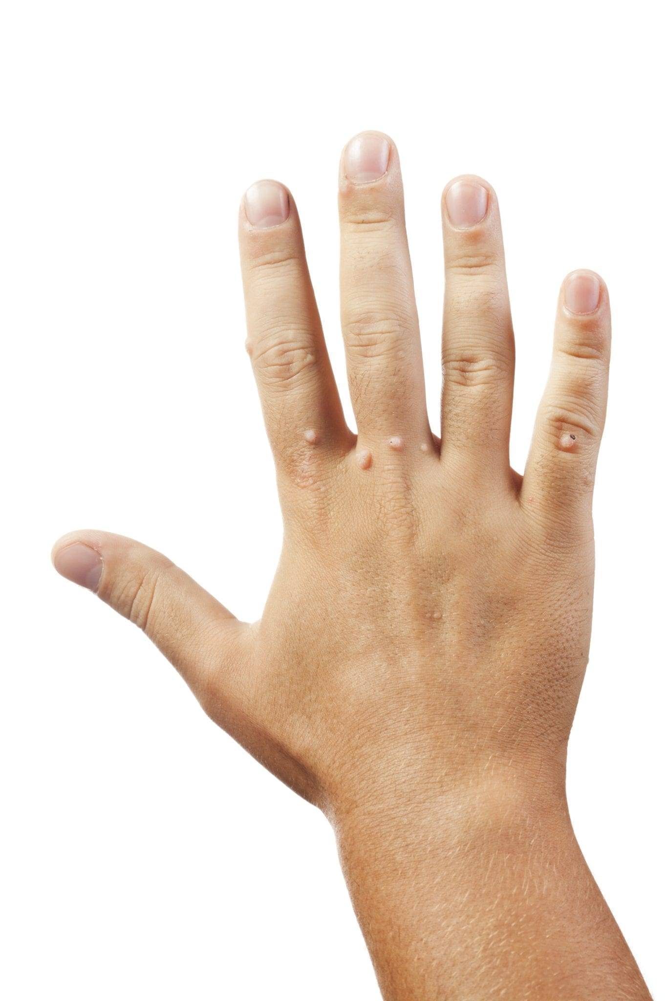 warts on hands while pregnant cancer la san dupa alaptare