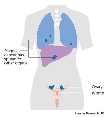 ovarian cancer jaundice