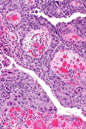 wart virus contagious hpv gola uomo