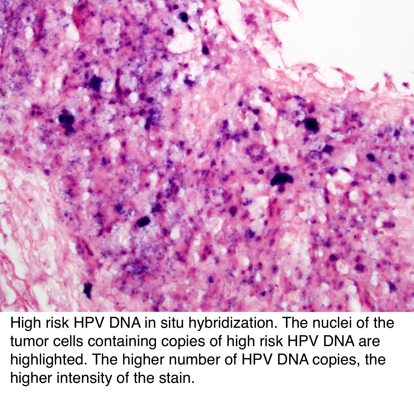 papiloma humano es hpv