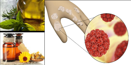 human papilloma virus home remedy treatment