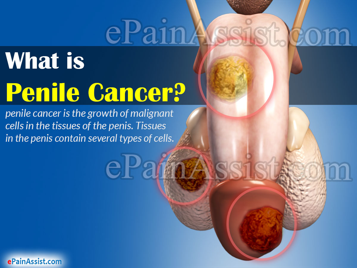 does hpv cause penile cancer breast cancer benign vs malignant