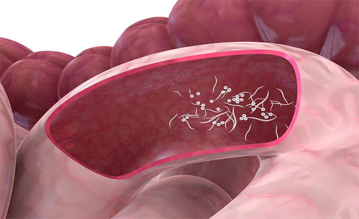 colorectal cancer anemia