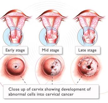 papilloma virus sintomi nelle donne