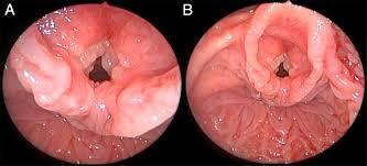 que es papilomatosis laringea human papillomavirus dna