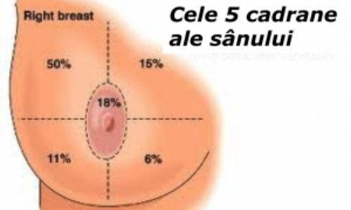 Cancerul mamar inflamator: factori de risc si diagnostic