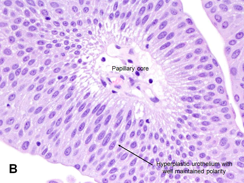 atypical papillary neoplasm
