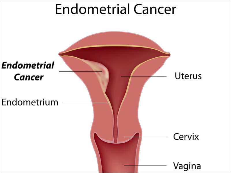endometrial cancer early stages