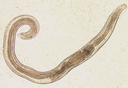 enterobius vermicularis estadios