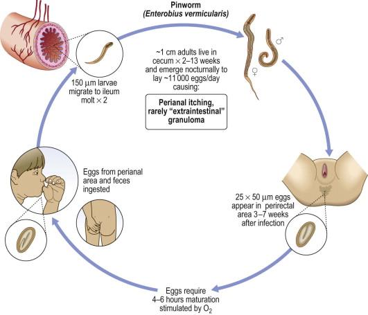 enterobius vermicularis size