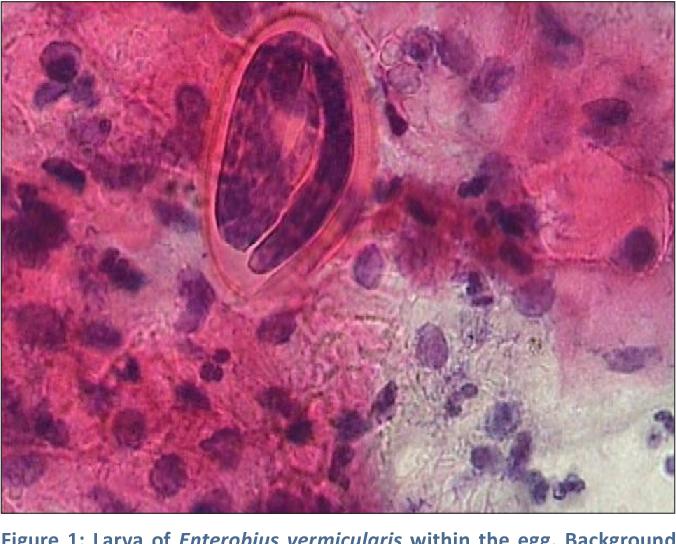 cancer of abdominal wall human papilloma virusu (hpv)