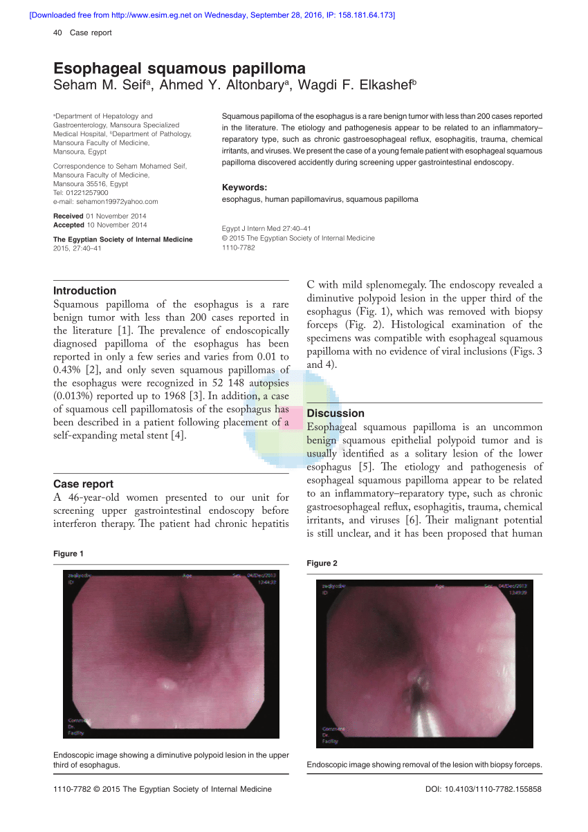 esophageal papilloma follow up