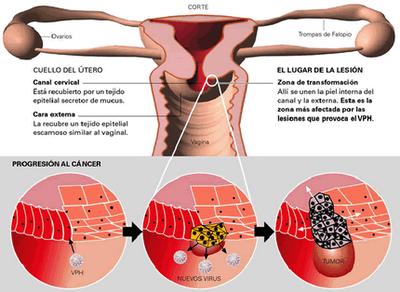 hpv virus and colposcopy penyakit enterobius vermicularis
