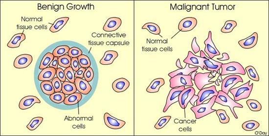 cancer and benign tumors papilloma breast surgery recovery