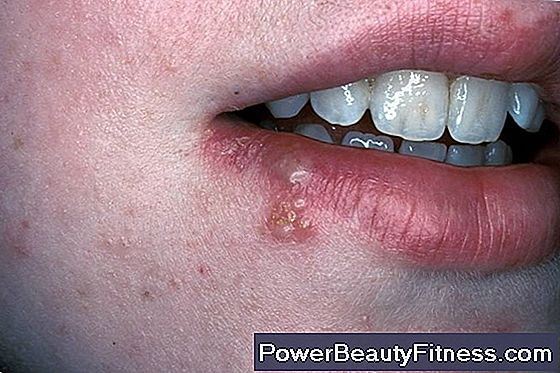 papilloma gola