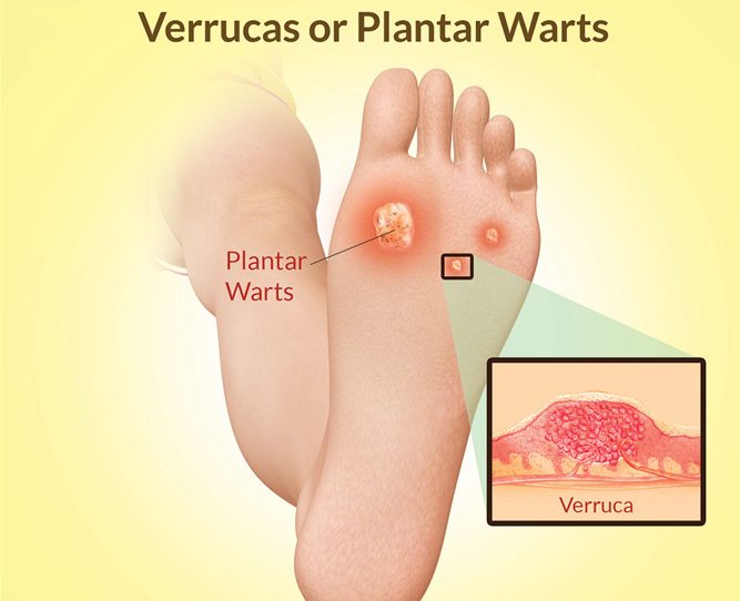 what is a wart virus infection