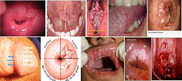 significado de virus del papiloma humano