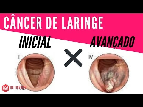 laryngeal papillomatosis cure anamie 3 stadium