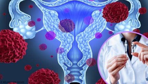 cervical cancer vaccine age limit papilloma urothelial pathology