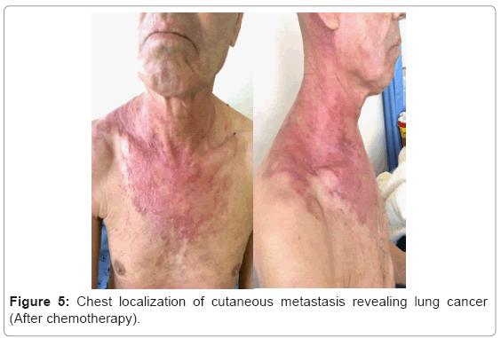 metastatic cancer in neck