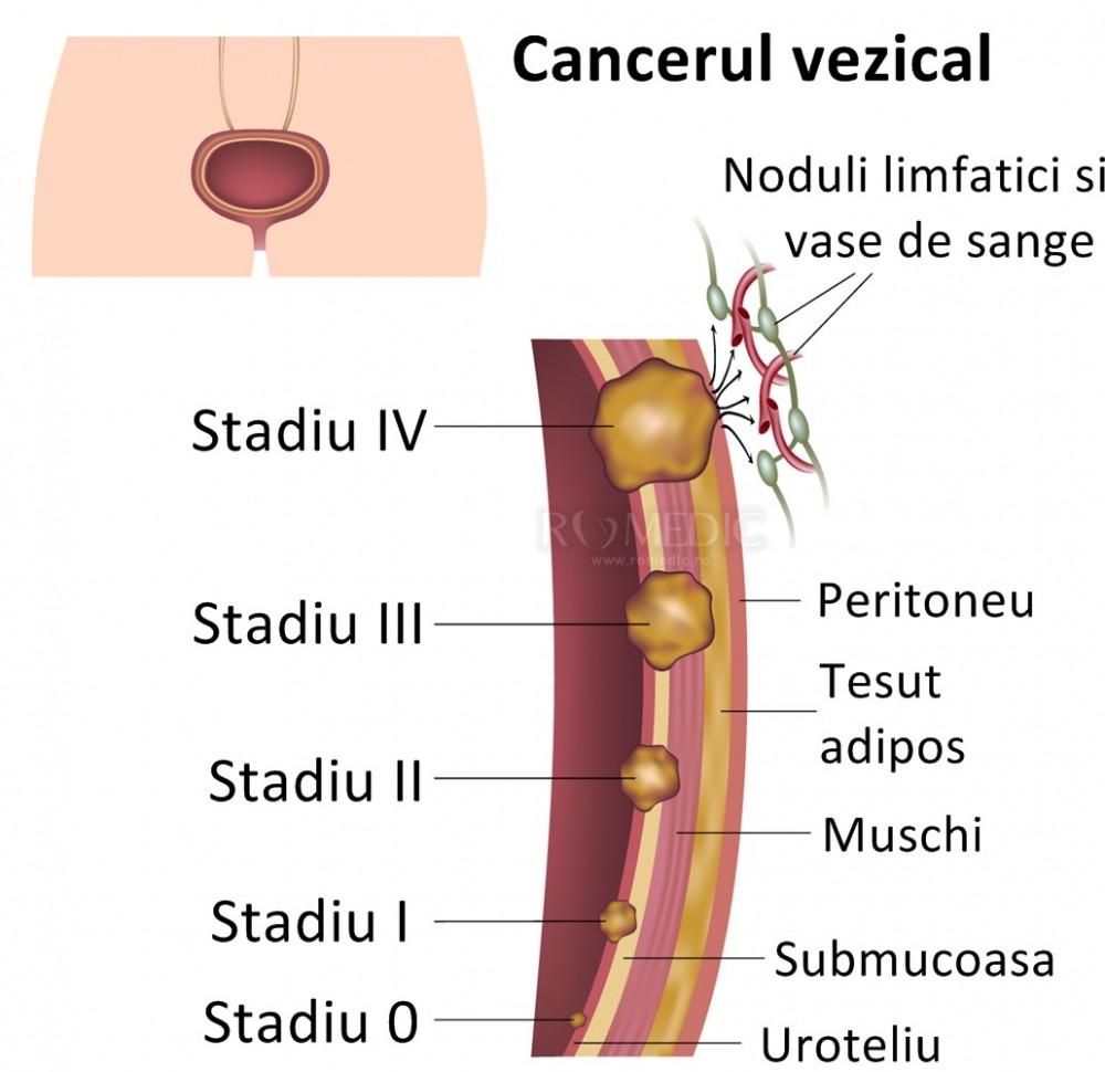 cervical cancer rate respiratory papillomatosis prognosis