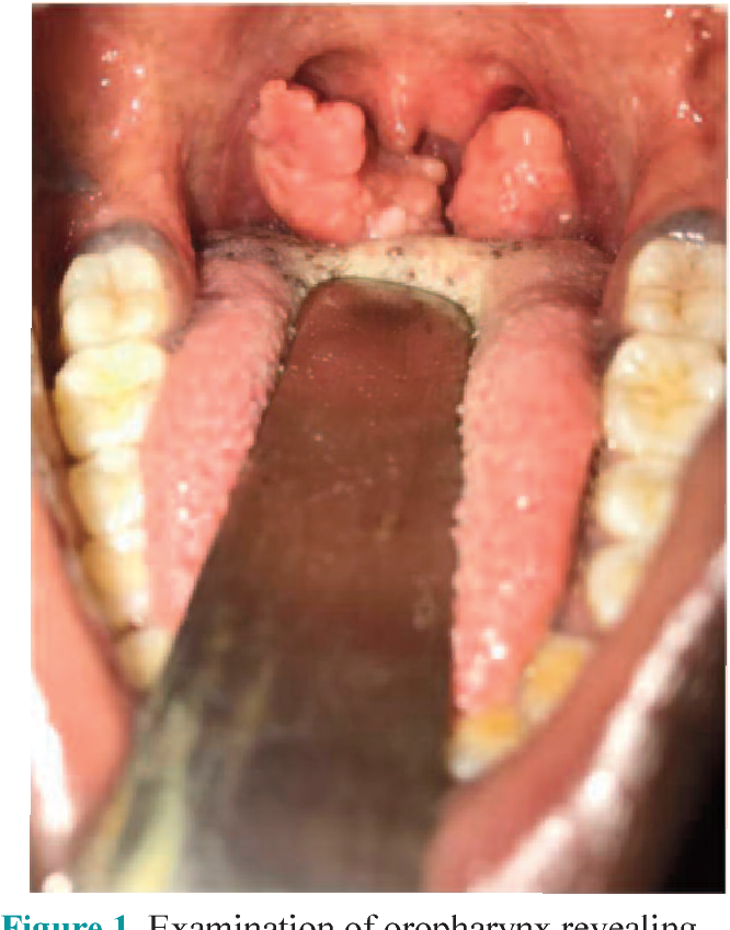 hpv caused tonsil cancer