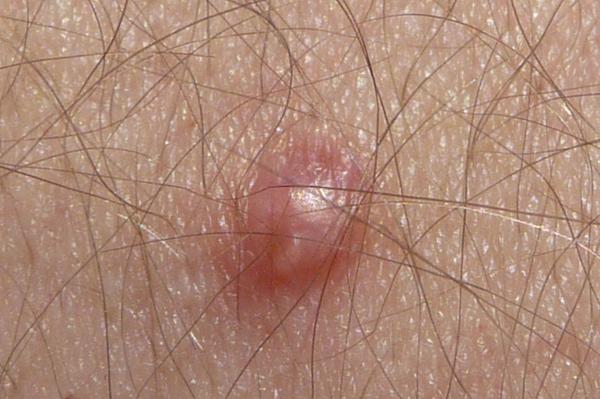 genital human papilloma virus cancer mamar investigatii