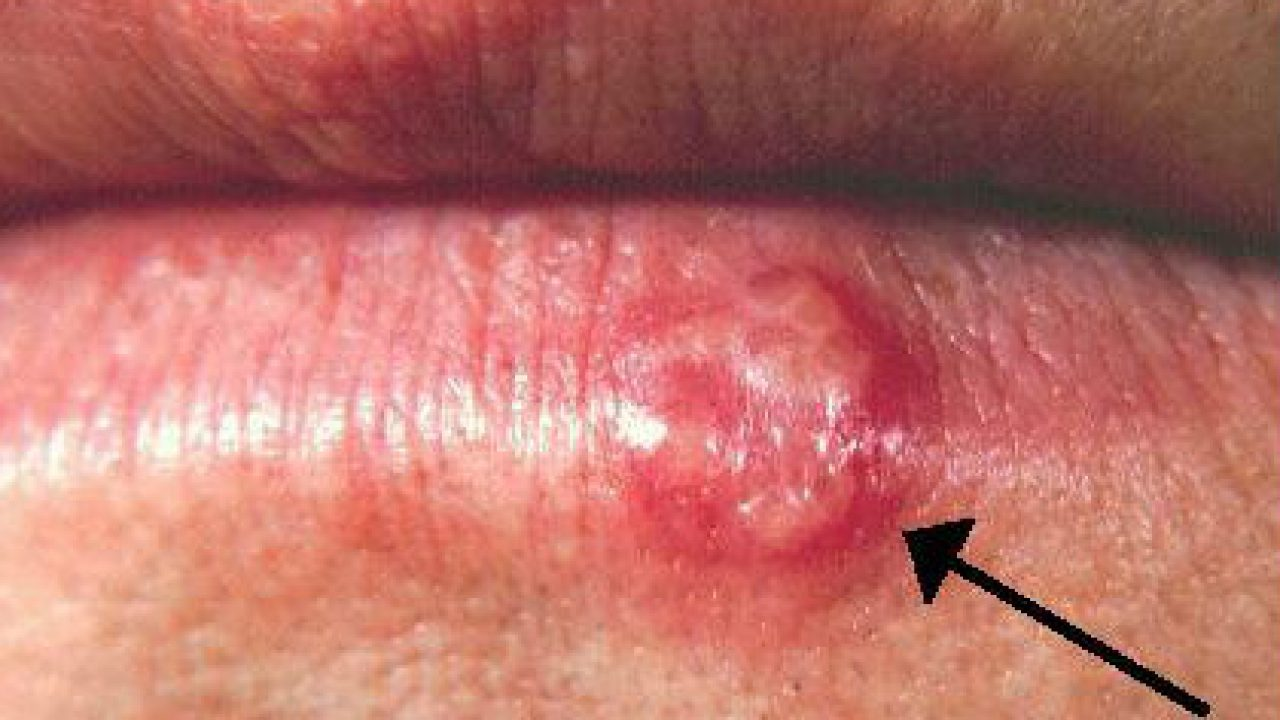 enterobiasis adalah papilloma virus cin 3