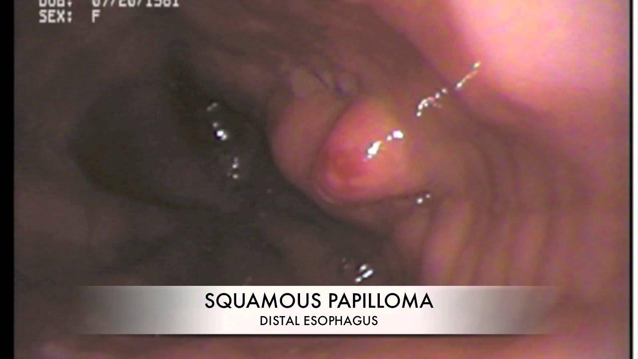 Pathology of the Gastrointestinal Tract: Fátima Carneiro · | Books Express